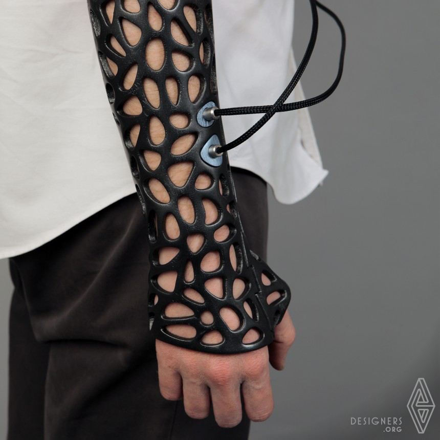 Inspirational Medical cast, attachable bone stimulator Design