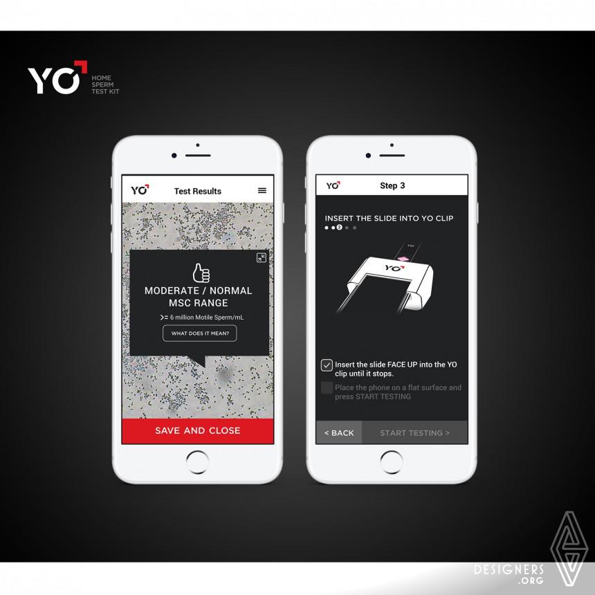YO Sperm Test multi-functional Smartphone Microscope Image